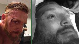 Heath Slater face cut open stitches live event wrestling wrestler wwe