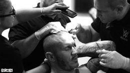 randy orton staples head stitches brock lesnar summerslam match tko wrestling wwe wrestler