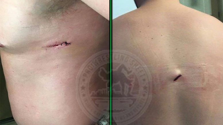 jamie noble stabbed pictures photos collapsed lung looking for info attackers