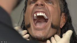 jeff hardy tooth broken video wwe payback