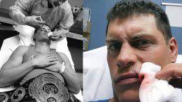 cody rhodes emergency room roh world title
