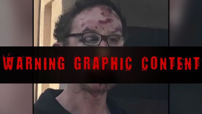 tom magee beaten parking spot video photos graphic