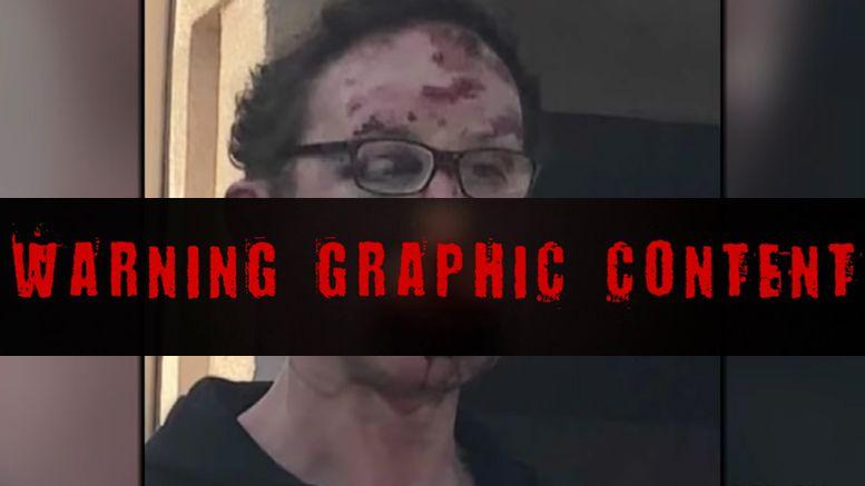 tom magee beaten parking spot video photos graphic