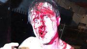 david arquette bloody gcw joey janelas la confidential