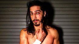mustafa ali black eye smackdown face busted randy orton rko photo