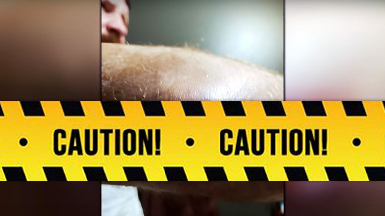 jon moxley mrsa infection photos aew full gear countdown special