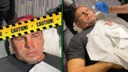 matt hardy sammy guevara chair shot photos damage gash head stitches aew dynamite
