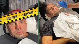 matt hardy sammy guevara chair shot photos damage gash head stitches aew dynamite